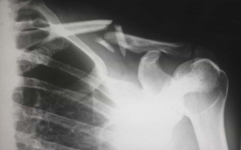 Auxílio-doença indeferido: qual a razão? Como recorrer?